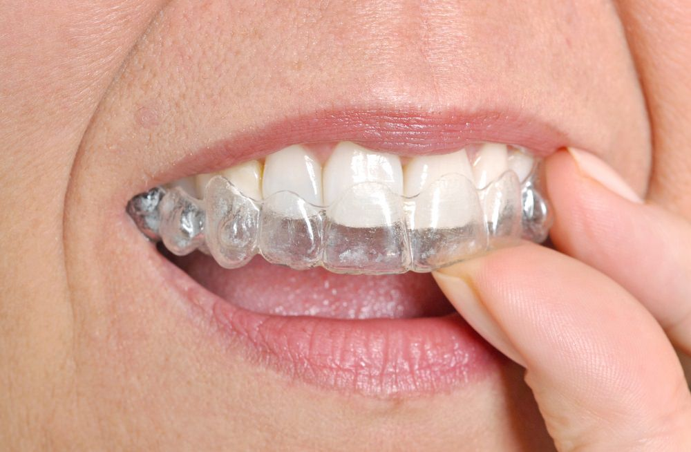 A person wearing clear dental aligners