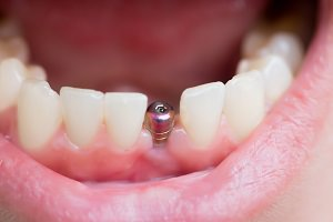 Dental implant costs dental aware feature image