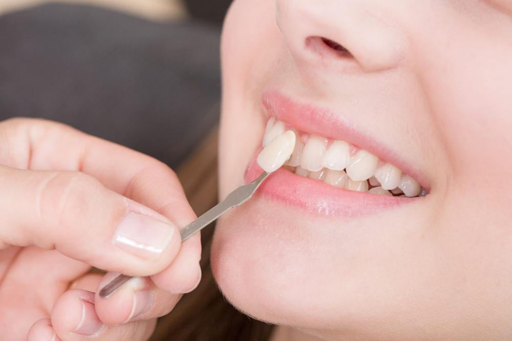 A dental veneer