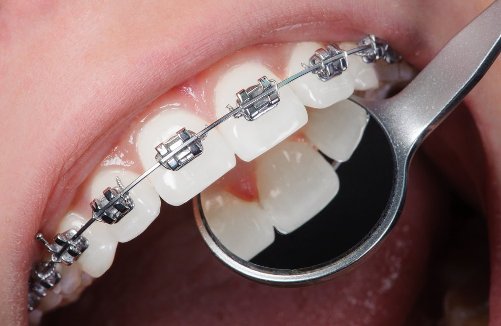 Traditional dental braces