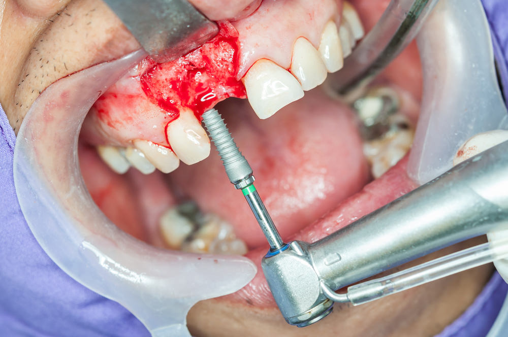 Dental implant screw going into a persons jaw