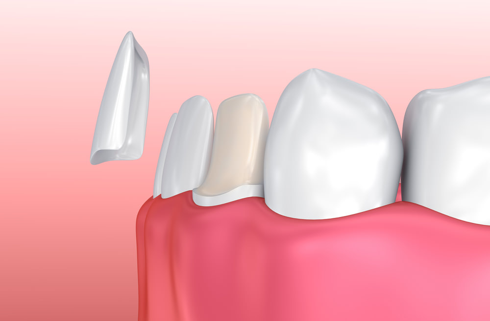 A 3D image of a Veneer - Some of the tooth is removed to make a perfect fit