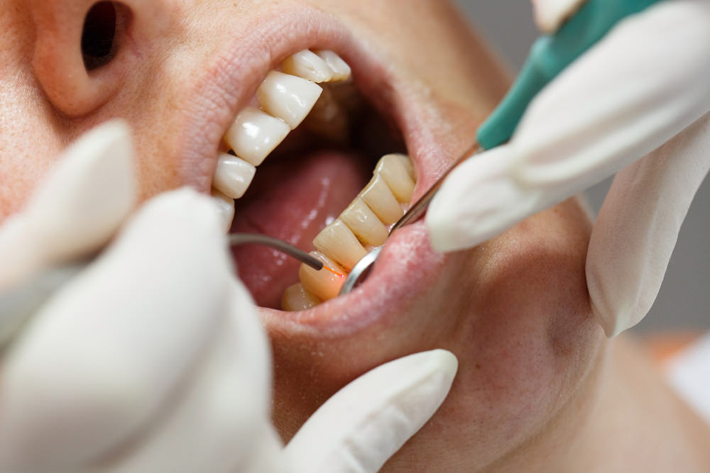 a person having their teeth cleaned by a dentist