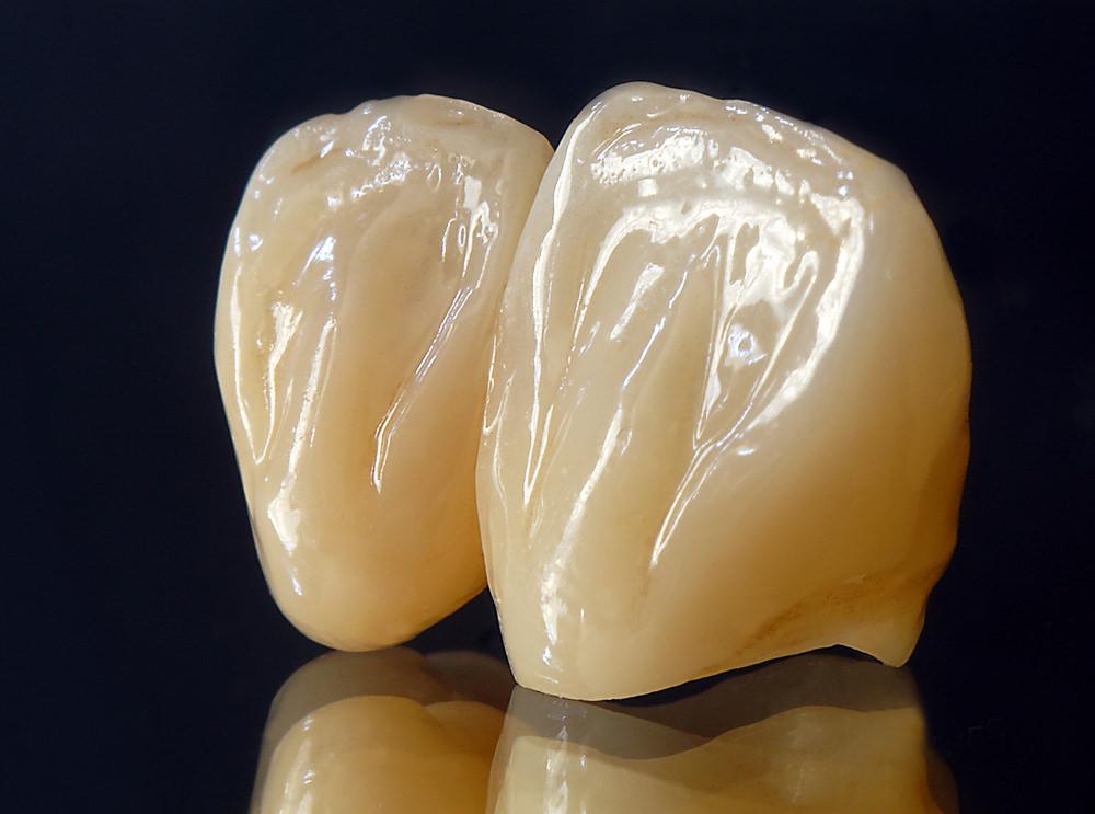 Ceramic zirconia crowns