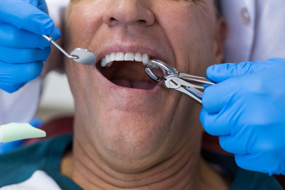 a dentist extracting a tooth