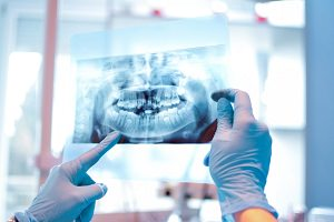 Dental Xray costs australia dental aware