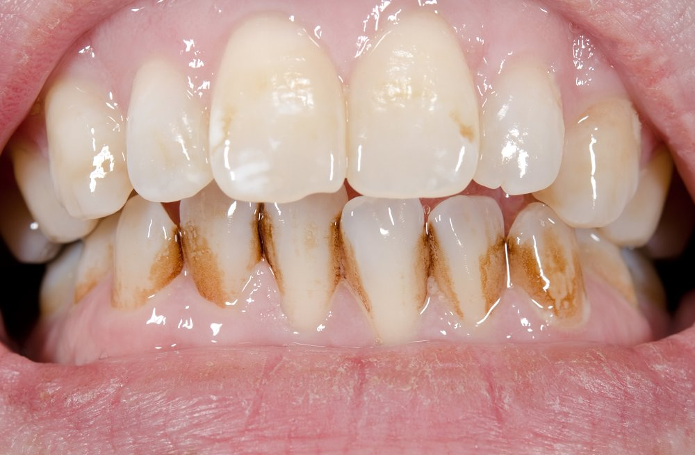 Teeth in need of a good professional clean by a Dentist