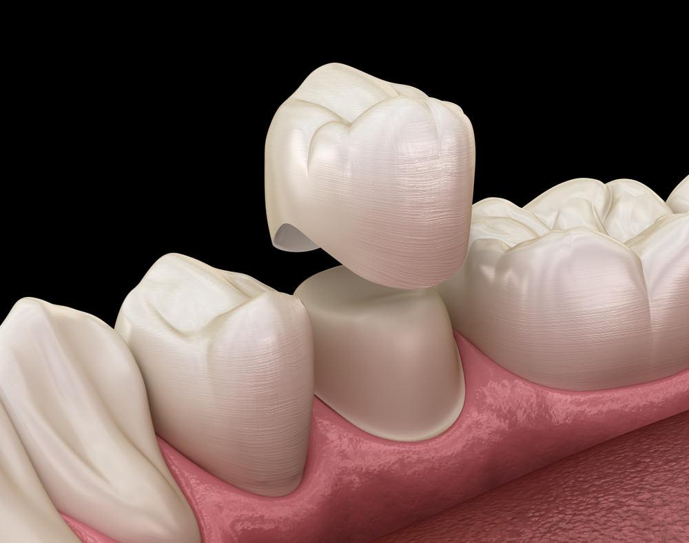 3d image of a dental crown