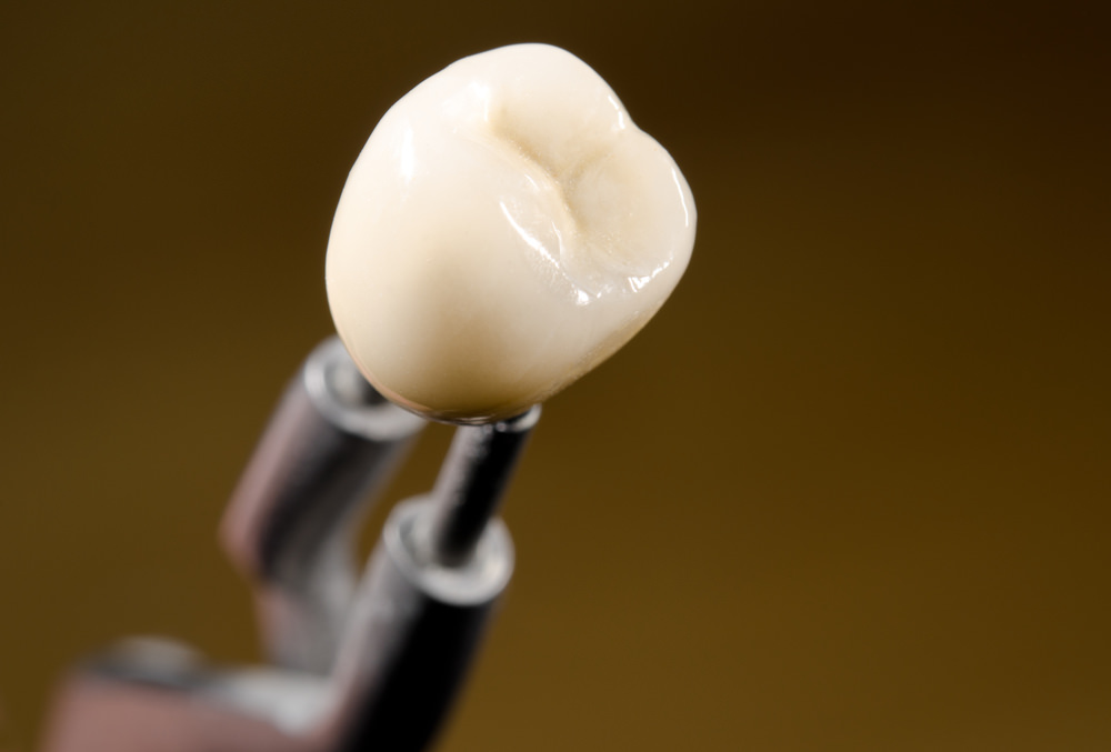 Dental costs for crowns feature image dental aware
