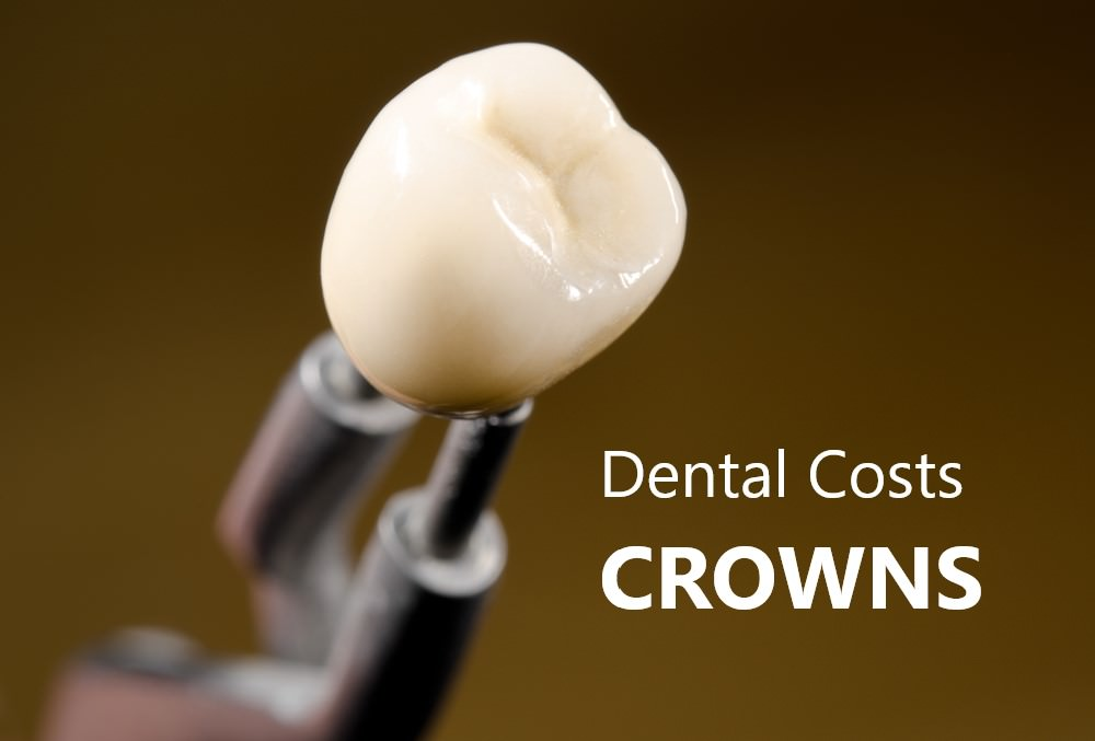 Dental costs Crowns feature image dental aware