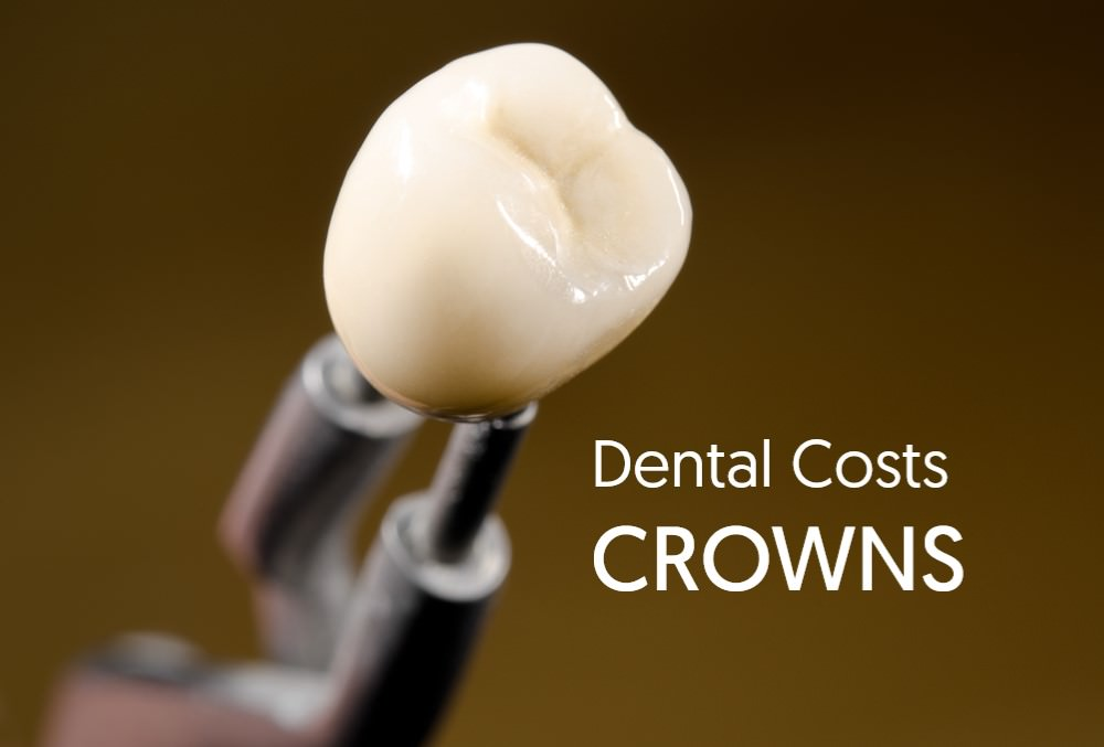 Dental Crown Costs Dental Aware