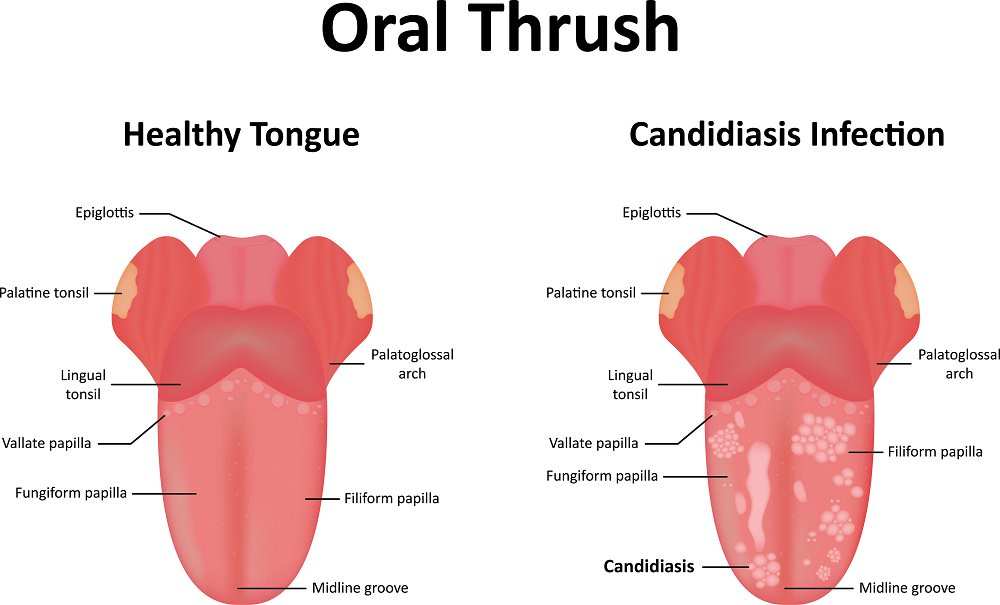 Oral Thrush comparsion
