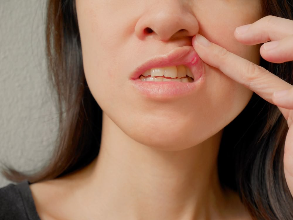 Mouth Ulcers main feature dental aware