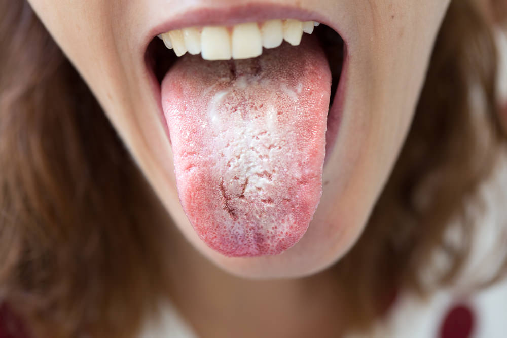 A lady with oral thrush