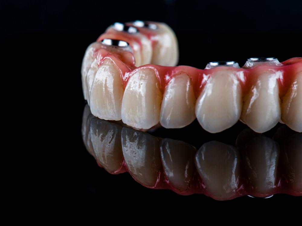 a dental bridge on a black background