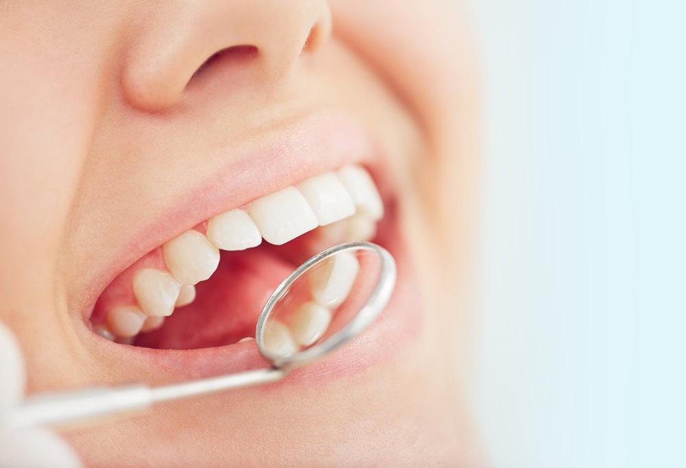 Dental bonding feature image