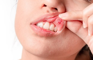 My mouth ulcer wont heal feature image dental aware