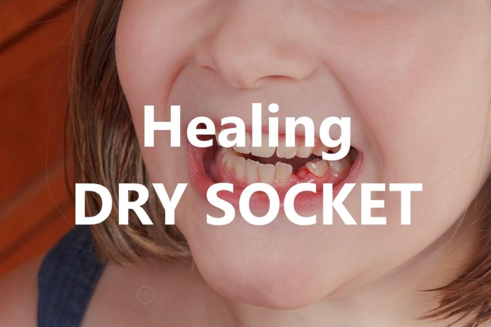 Healing dry socket feature dental aware