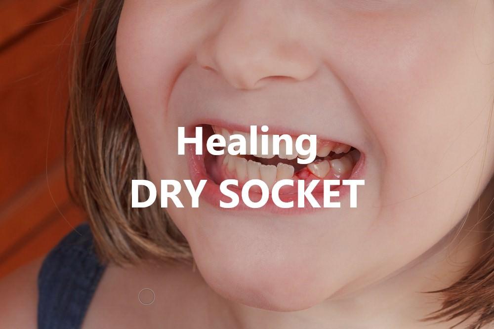 Healing dry socket feature image dental aware