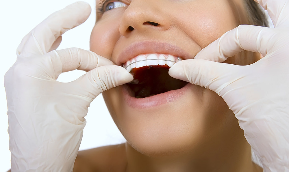 A lady having a dental retainer fitted