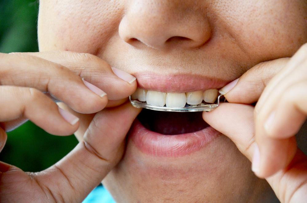Wearing a standard dental plate