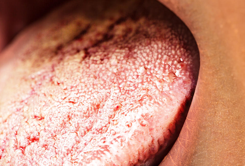 Oral Candida feature image dental aware