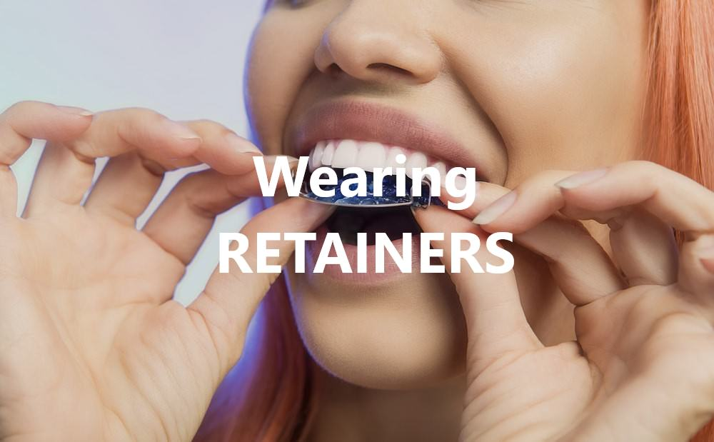 wearing retainers dental aware