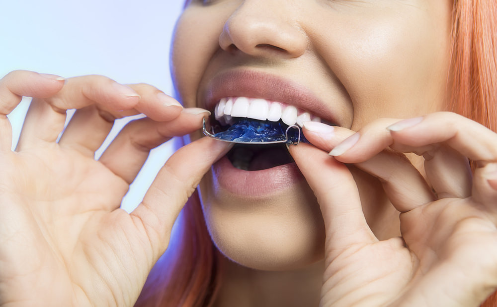 wearing a retainer dental aware