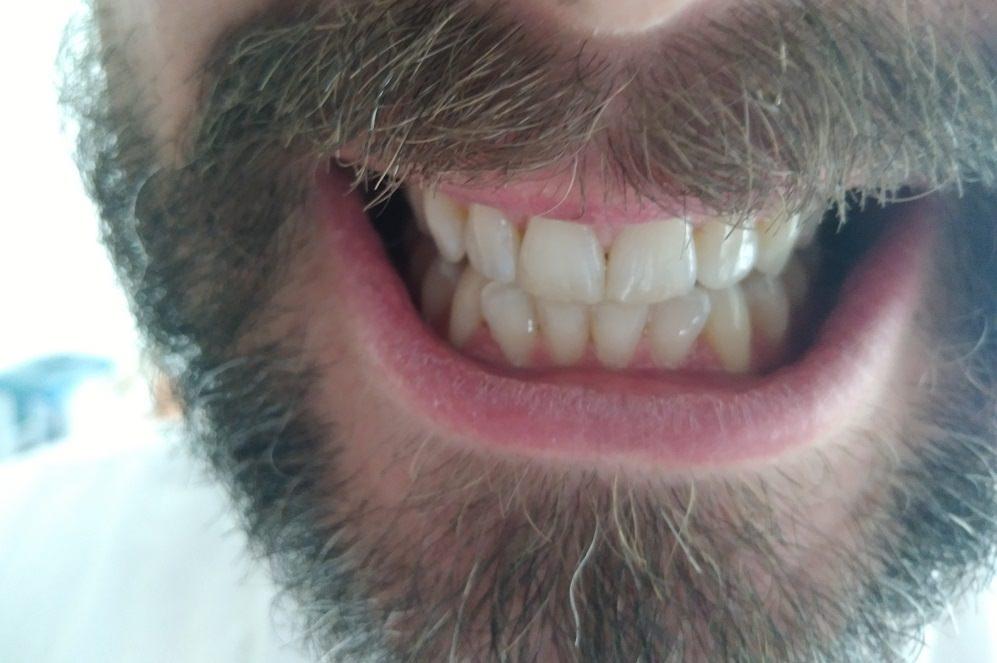 Before using HiSmile PAP+ teeth whitening kit