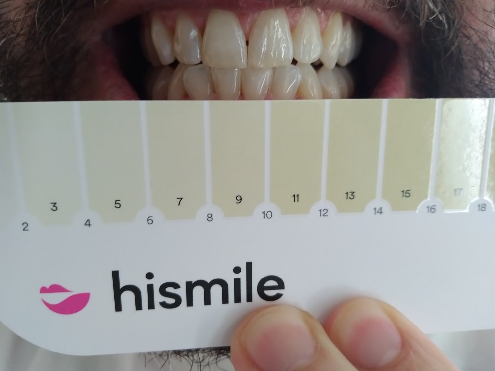 HiSmile tooth colour guide before using the PAP+ Teeth whitening kit