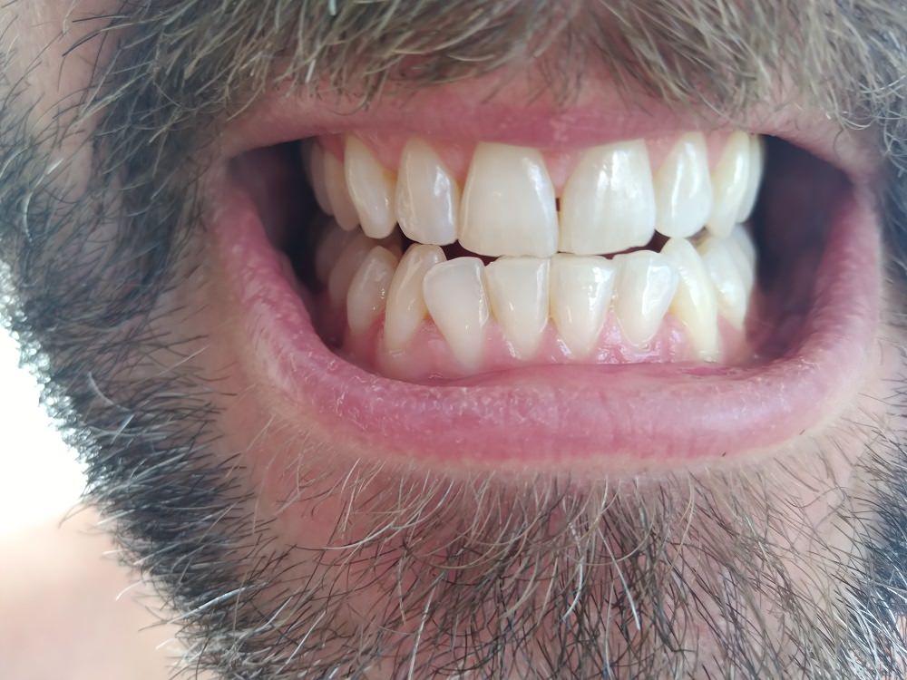 After using HiSmile PAP+Teeth Whitening Kit