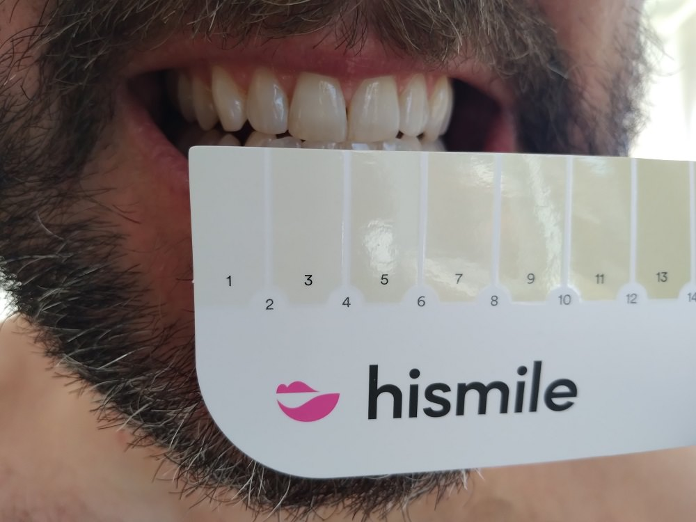 After using the HiSmile Teeth Whitening kit