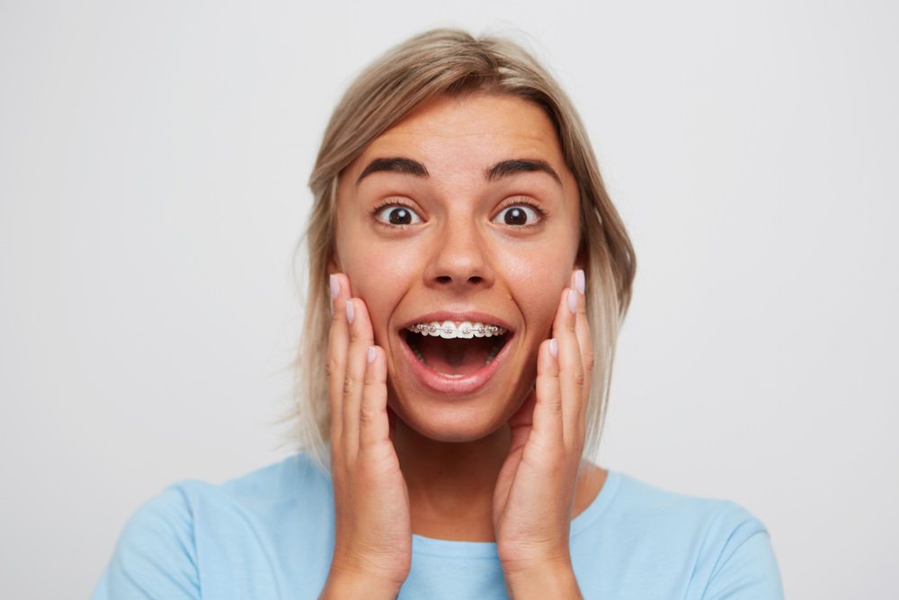 A lady smiling who has dental braces