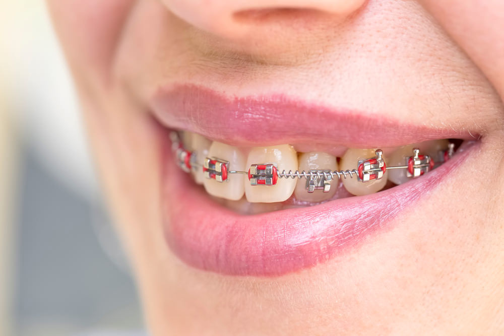 A woman with dental braces