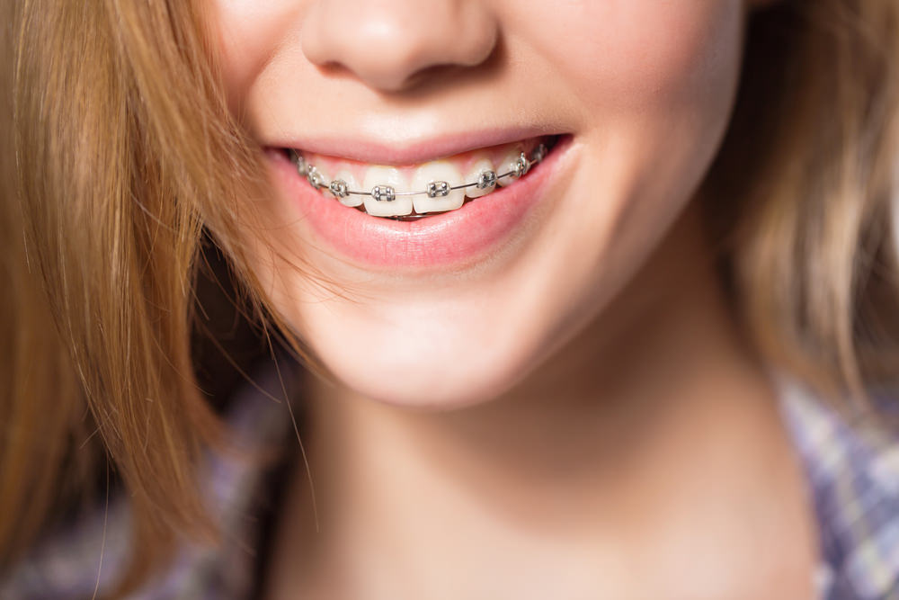 A girl with dental braces