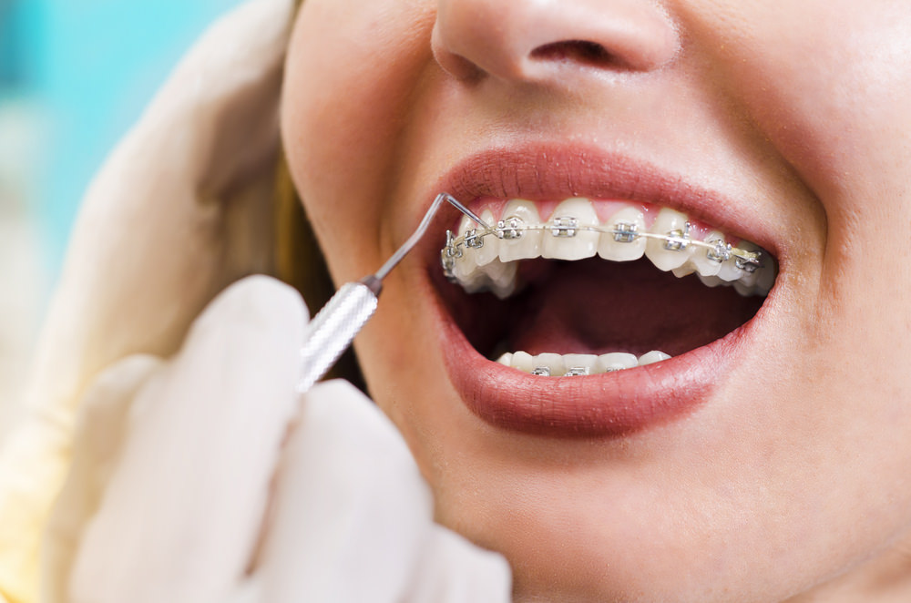 Braces elastics feature image dental aware