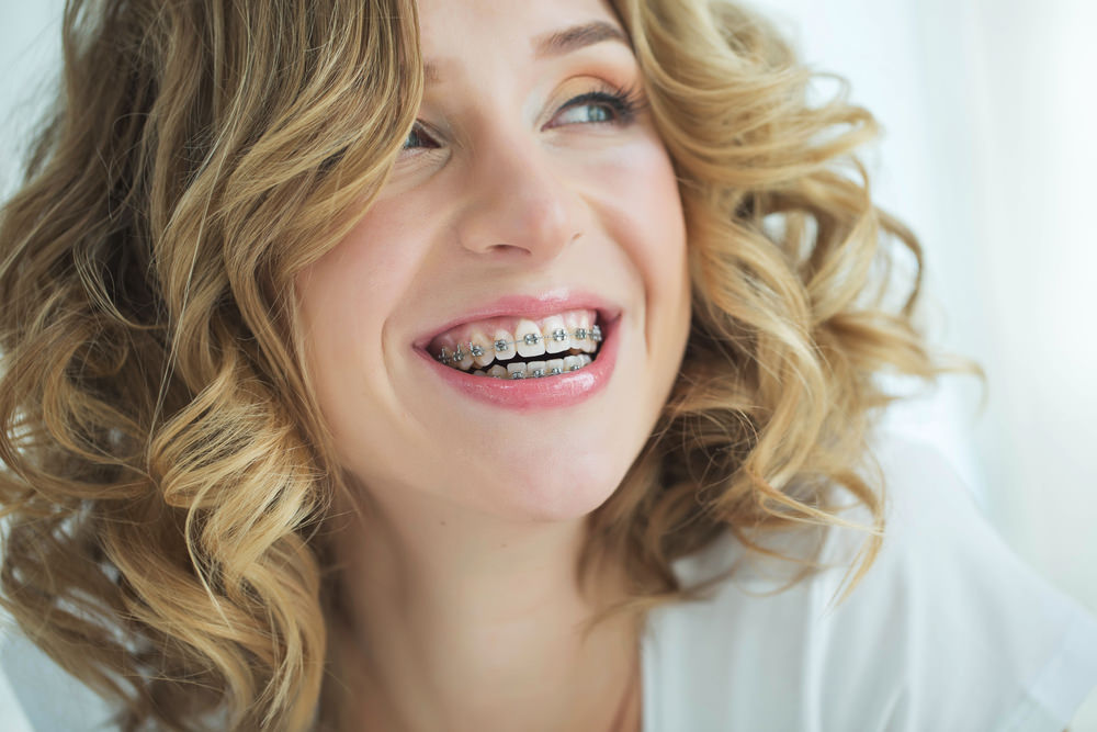 A woman with dental braces smiling.