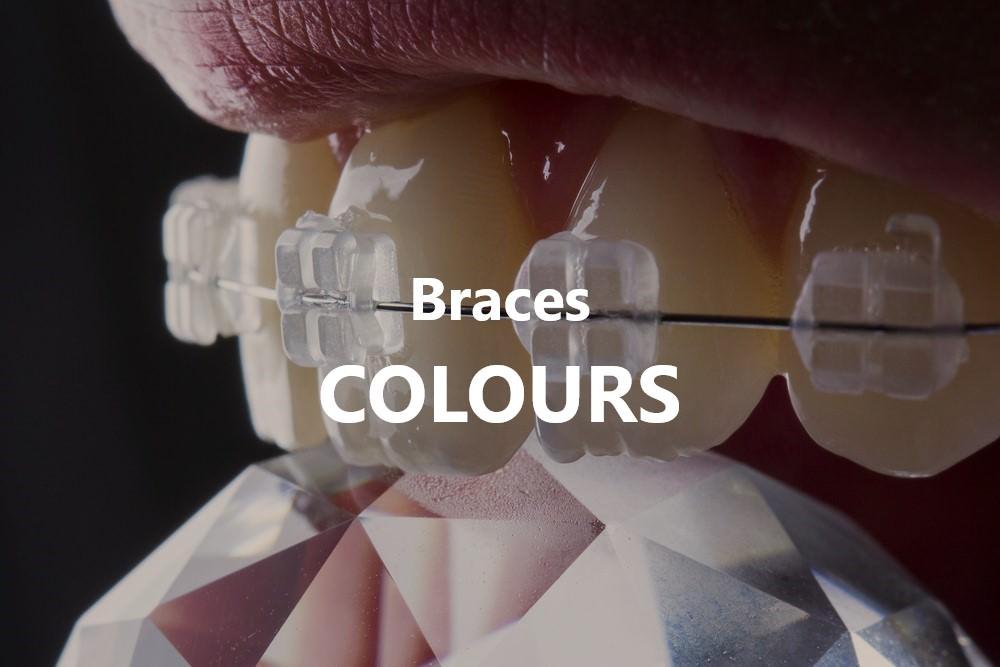 Braces colours dental aware feature image