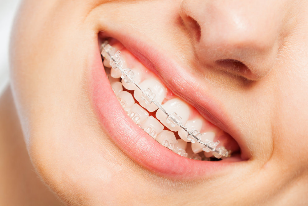 A lady smiling with braces